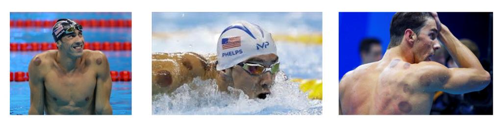 Physio SET app - ¿Puedo ir a nadar?